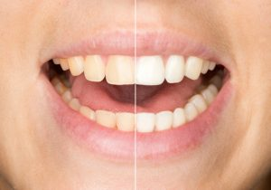 Learn more about teeth whitening in Midlothian for the holidays.
